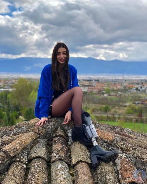 Кьяра Борди (Chiara Bordi) модель с бионической ногой.