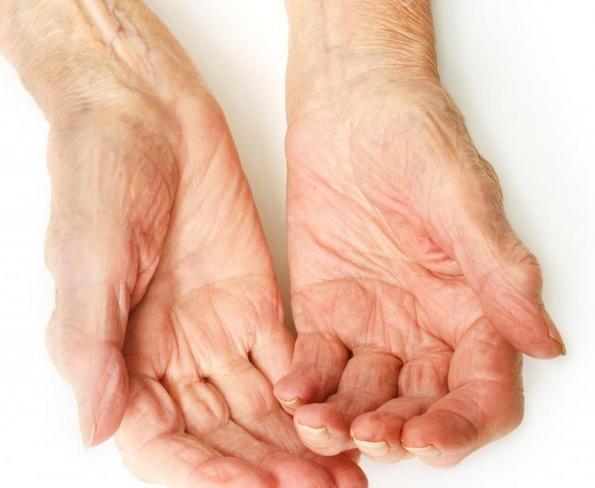 Иммунодепрессанты могут быть частью лечения ревматоидного артрита.