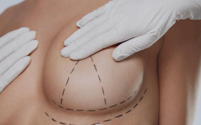 Подтяжка груди с имплантами. Восстановление груди после родов