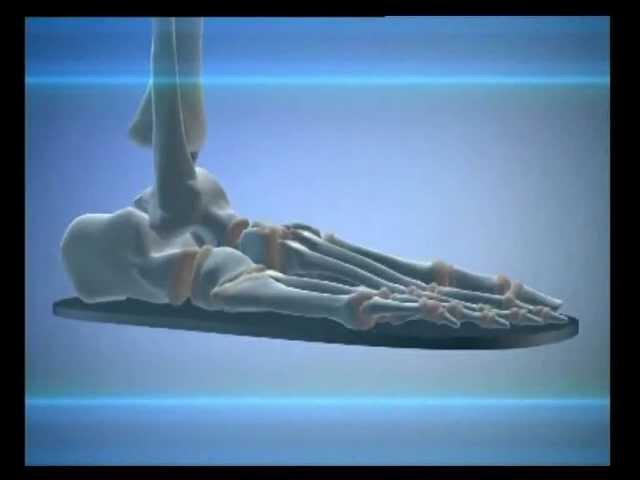 Поперечное плоскостопие и косточки на ногах