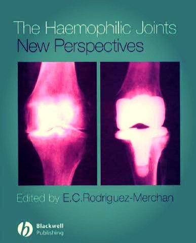 The Haemophilic Joints New Perspectives