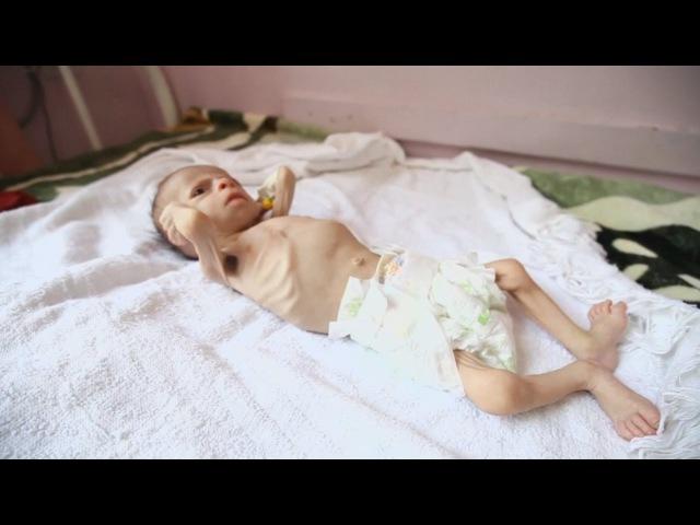 ООН 1 4 млн детей на грани голодной смерти новости