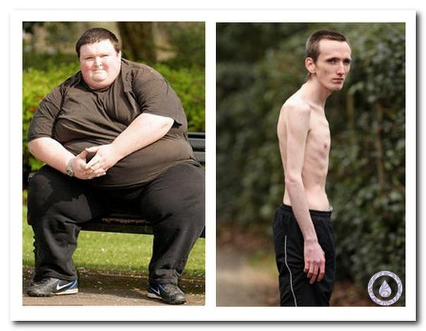 Диабет 2 типа у худых людей