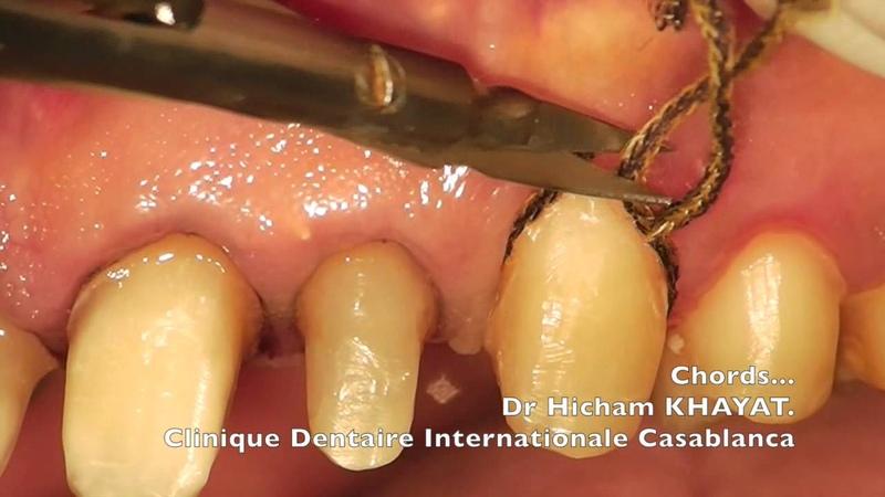 Copie de dentistry prosthodontics Chord placement