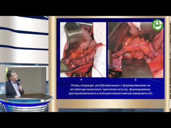 Комяков Б К Нетипичные урологические операции Клинические наблюдения