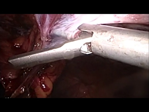 TAPP approach for the management of an intraparietal hernia