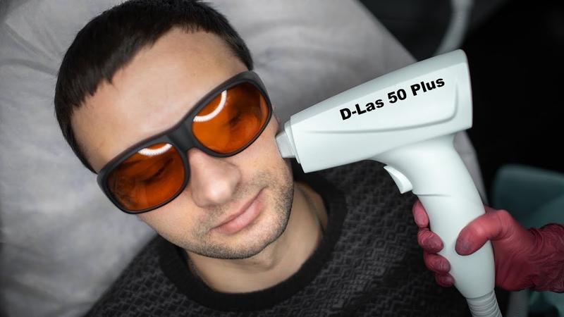 Диодный лазер для эпиляции D-Las 50 plus! Выбор профессионалов!