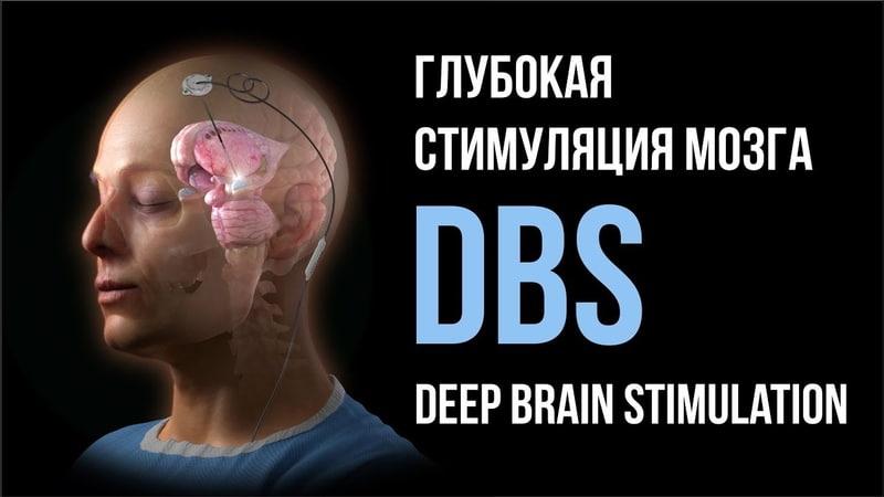 DBS Глубокая стимуляция мозга РНХИ им. проф. А.Л. Поленова