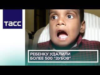 Ребенку удалили более 500 'зубов'