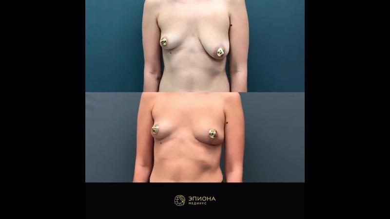 Обзор результатов редукционной маммопластики Пластический хирург Вашин М П Клиника Эпиона Медикус
