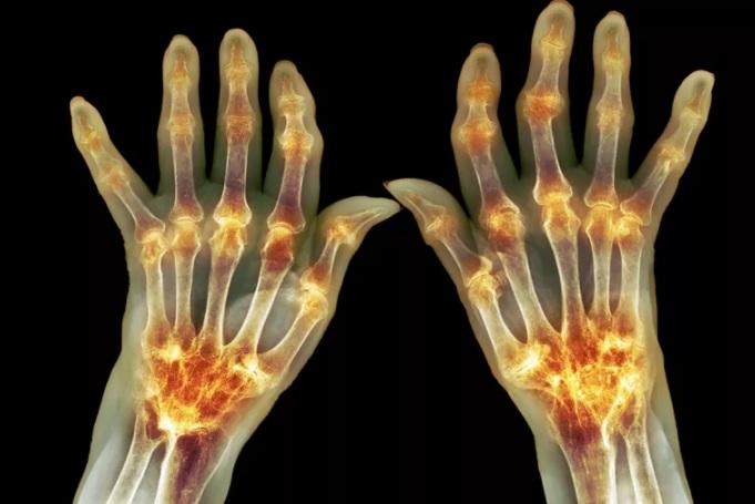 Признаки и симптомы артрита, изображение №1